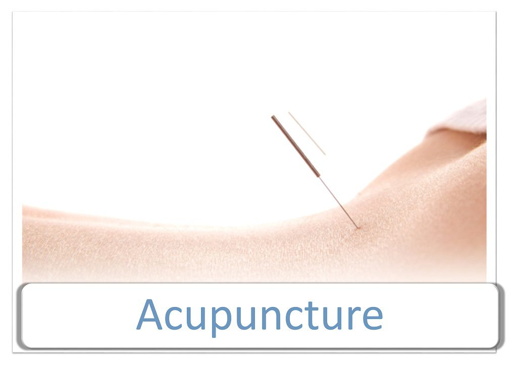 what is acupuncture Acupuncture refers to the insertion of fine, solid needles into any part of the body  for pain relief, healing and general well being it has been used by the chinese.