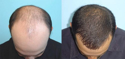 of hair transplant beard transplant and even eyebrow transplant ...